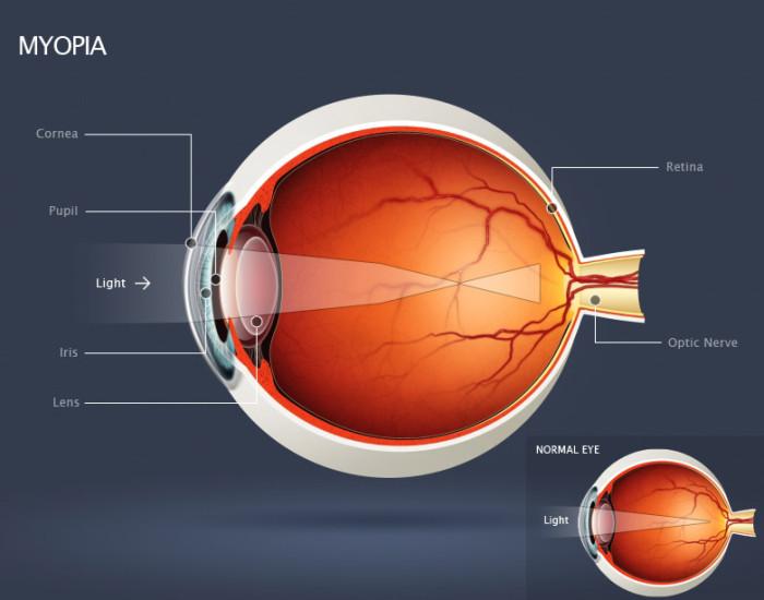 Diagram-myopia