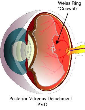 posterior-vitreous-detachment-PVD