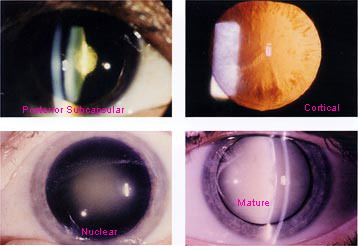 cataract_examples