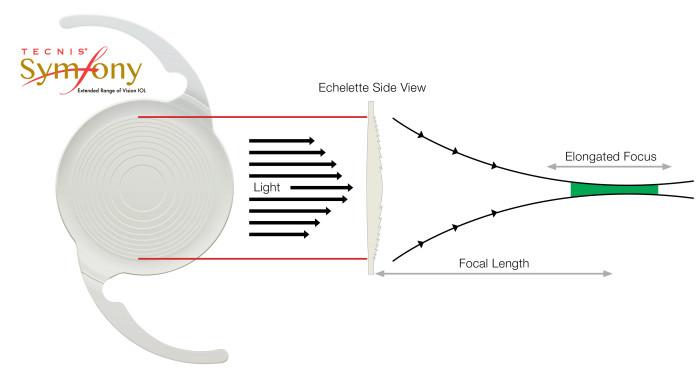 Tecnis-Symfony-illustration