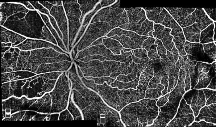 angiovue-hd_oct-angiography-montage-scan-image