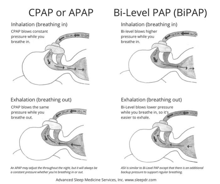 CPAP vs BiPAP
