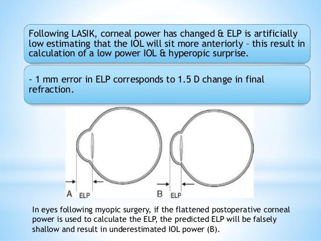 ELP Formula error