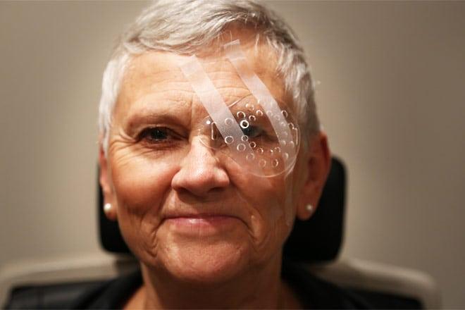 Cataract-surgery-Eye shield-