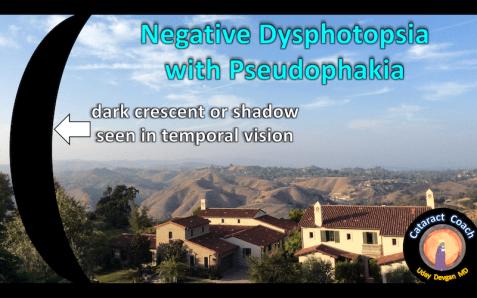 negative-dysphotopsia